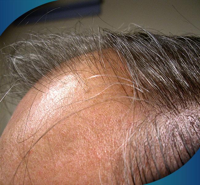 hlcc productos y tratamientos para la caida del cabello tratamiento 1 - Productos y Tratamientos para la caída del Cabello | JUVENSA