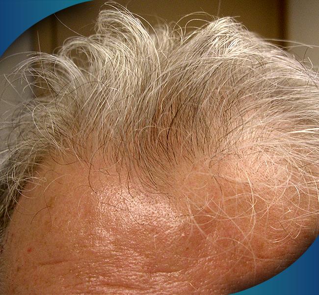 hlcc productos y tratamientos para la caida del cabello tratamiento 2 - Productos y Tratamientos para la caída del Cabello | JUVENSA