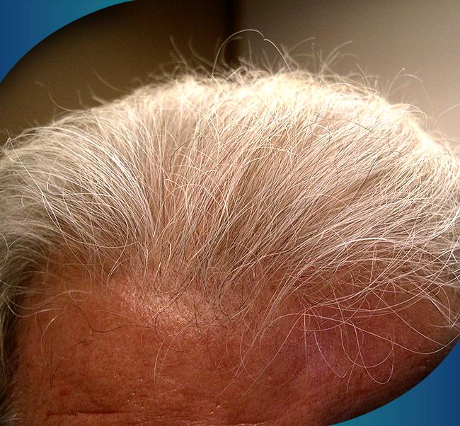 hlcc productos y tratamientos para la caida del cabello tratamiento 3 - Productos y Tratamientos para la caída del Cabello | JUVENSA